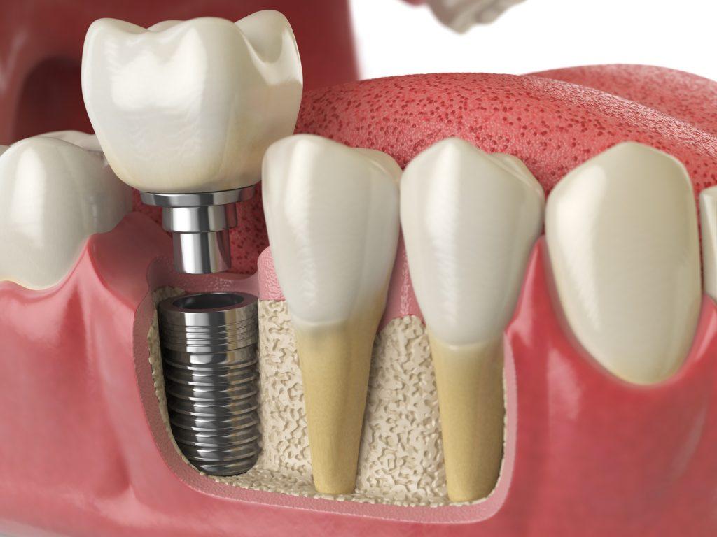 Dental Implants White Dentistry Nogales